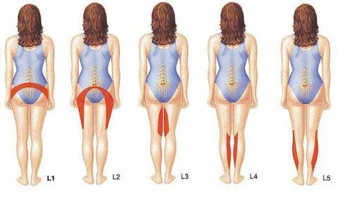 Принцип формирования болевого синдрома и нарушения чувствительности при межпозвоночной грыже