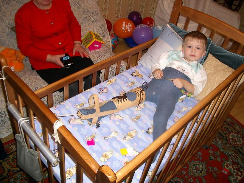 При болезни Пертеса ребенку назначается длительная иммобилизация специальными шинами-распорками