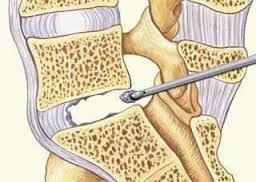 Проведение микродискэктомии