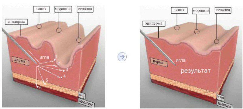Процедура иглоукалывания