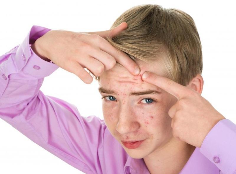 Прыщи у подростков – нормальное явление, связанное с гормональной перестройкой организма