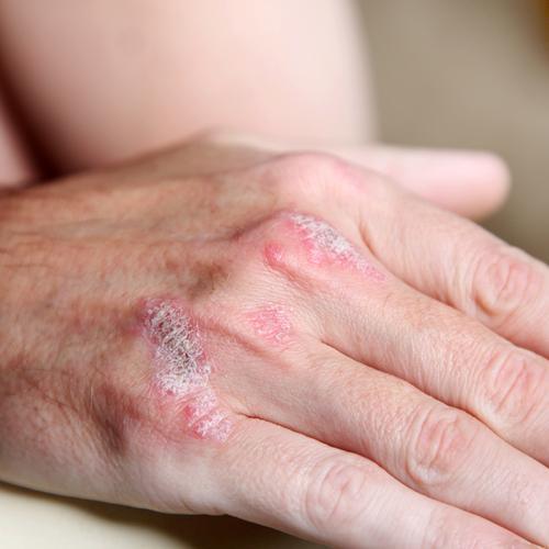 Псориатический полиартрит - симптоматика