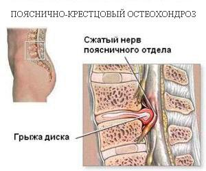 Развитие остеохондроза