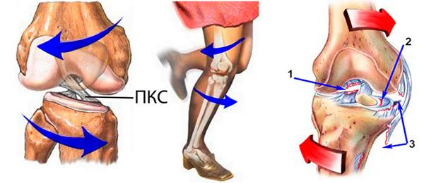 Разрыв крестообразных связок колена