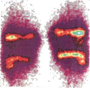 Рассекающий остеохондроз (болезнь Кенига). Радиоизотопное исследование