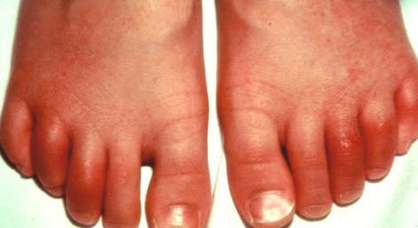 Реактивный артрит суставов - проявление