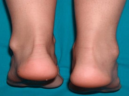 Артрит у ребенка симптомы 12