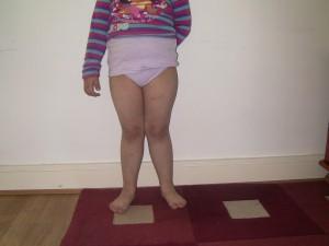 Ребенок с плоскостопием и деформацией ног