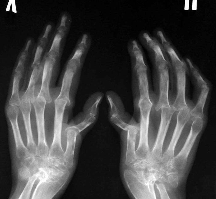 Ревматоидный артрит - рентген