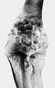 Рентгенограмма при хондроматозе локтевого сустава — переднезадняя проекция