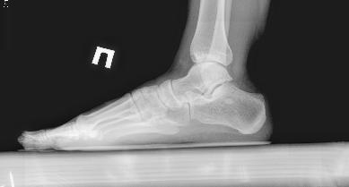 Рентгенография стоп стоя с нагрузкой