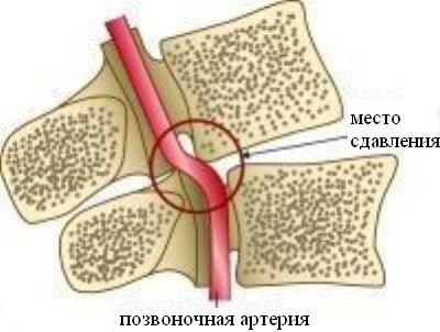 Сдавливание позвоночной артерии при остеохондрозе