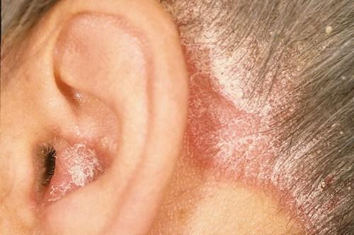 Себорея волосистой части головы - фото