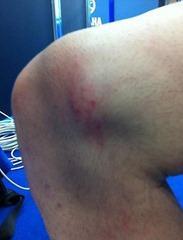 Симптомы коленного вывиха