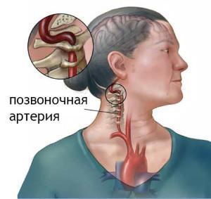 Синдром позвоночной артерии Синдром позвоночной артерии
