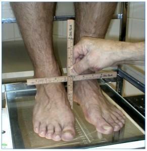 Сначала измеряется высота стопы, а затем её длина. Затем вычисляется так называемый подометрический индекс