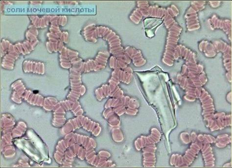 Соли мочевой кислоты в сыворотке крови