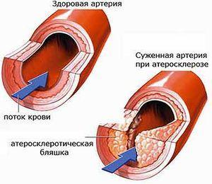 Спазмы артерий сердца