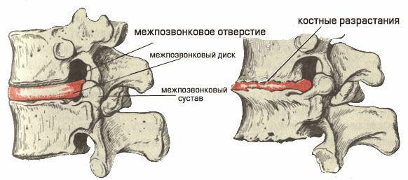 Деформирующий спондилез шейного отдела позвоночника