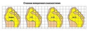 Степени поперечного плоскостопия - схема