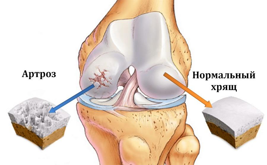 Схематическое изображение коленного сустава с артрозом и нормальным хрящом