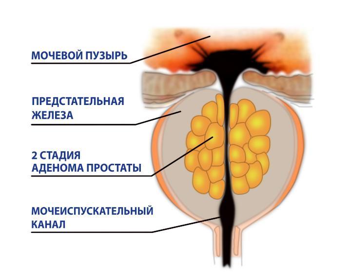Аденома простаты 2 степени нужна ли операция