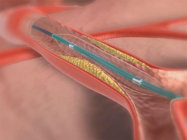 Схема ангиопластики