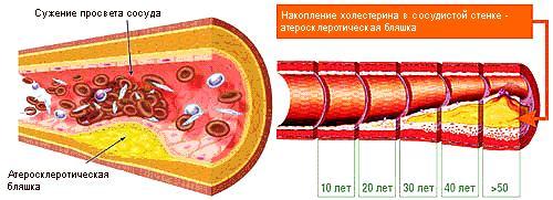 Тромбоз коронарных артерий