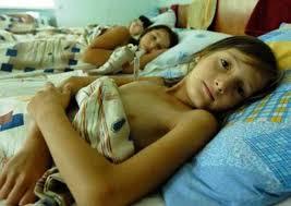 Туберкулез может проявиться на поздних стадиях