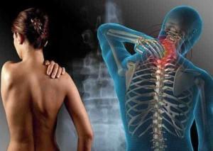 Фибромиалгия симптомы