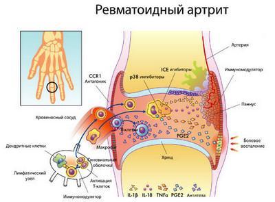 Фото плаката ревматоидного артрита