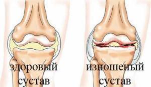 Хроническое заболевание суставов, связанное с их деформацией и ограничением подвижности