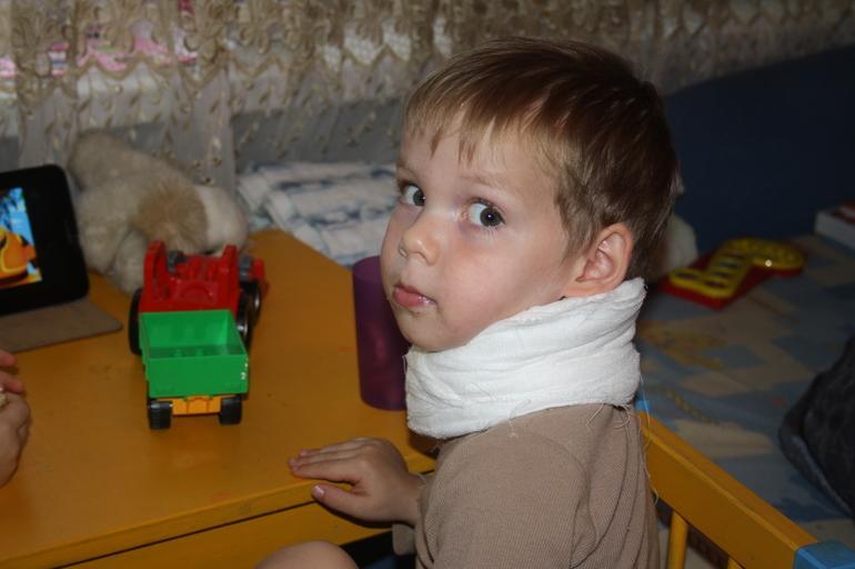 Что важно знать о миозите у детей