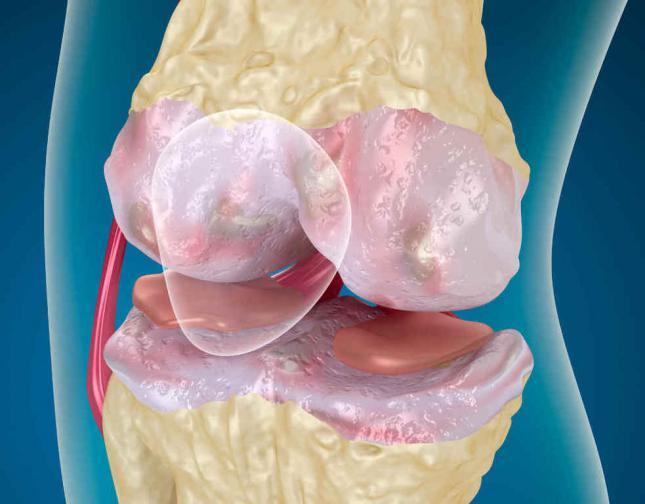 Пателлофеморальный артроз коленного сустава - симптомы ...