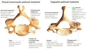 Шейные позвонки - схема, анатомия