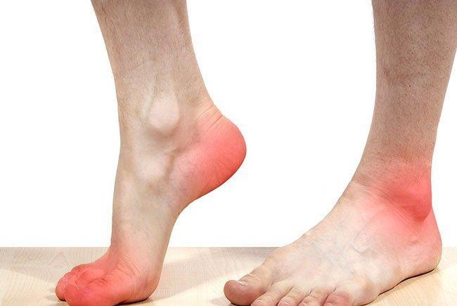 Шпора возникает по разным причинам, в числе которых сильные нагрузки и лишний вес