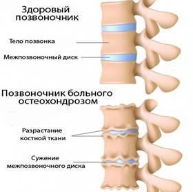 Остеохондроз — это дегенеративное заболевание, результатом которого является нарушение целостности межпозвонковых дисков и уменьшение просвета между ними