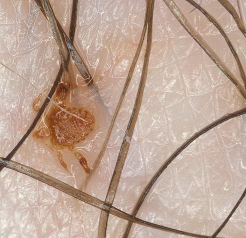 Лобковый педикулез. Причиной лобкового педикулеза является лобковая вошь (Pediculus pubis) или площица