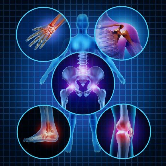 Артрит или артроз: чем отличаются заболевания суставов