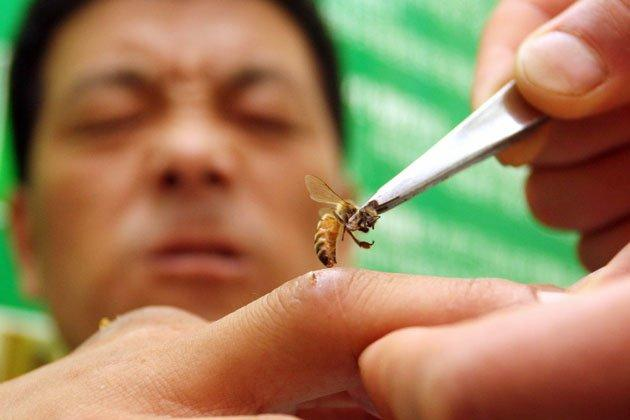 опухоль после укуса пчелы