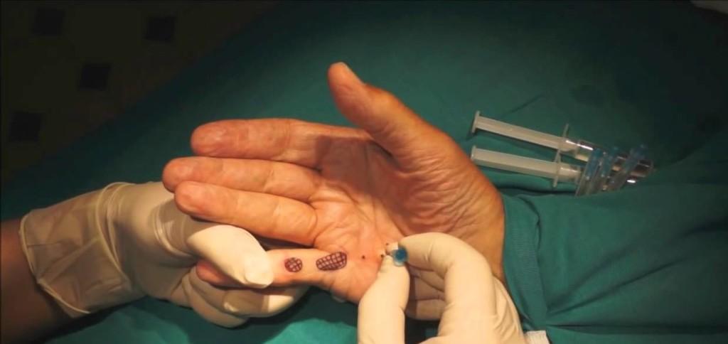 Игольная апоневротомия
