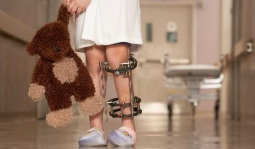 Запущенный артрит может сделать малыша инвалидом
