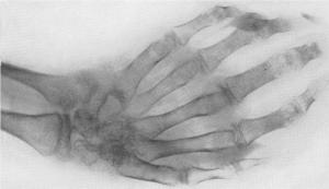 Туберкулез лучезапястного сустава