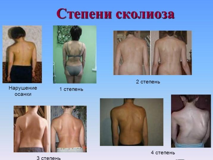 В медицине различают несколько разновидностей сколиоза, в зависимости от формы искривления