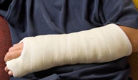Травмы пальцев рук увеличивают риск развития артроза