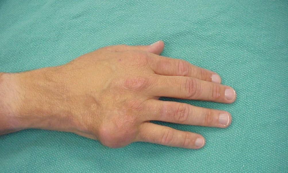 Течение подагры на руках - фото