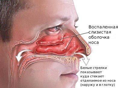 Воспаленная слизистая и насморк