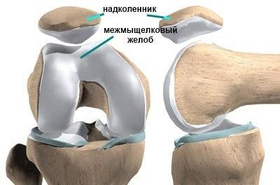 Надколенник (коленная чашечка) -это подвижная косточка в толще сухожилия, расположенного по передней поверхности коленного сустава