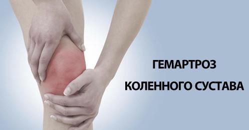 Гемартроз как симптом
