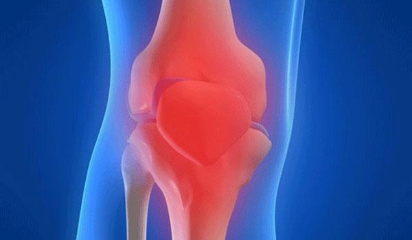 Часто в тканях синовиальной оболочки сустава способен развиться воспалительный процесс - реактивный синовит